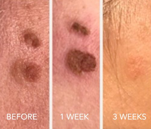 Before and After Cherry Angioma Treatment